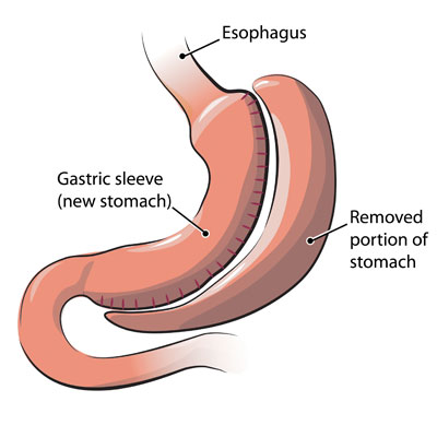 gastric-sleeve