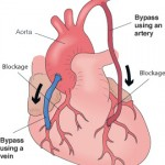 Coronary Artery Bypass Surgery in Mexicali