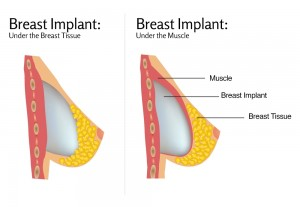 Breast Implants Removal Surgery